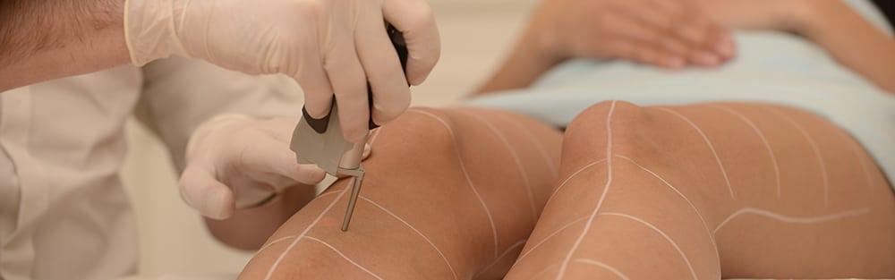 épilation laser jambes