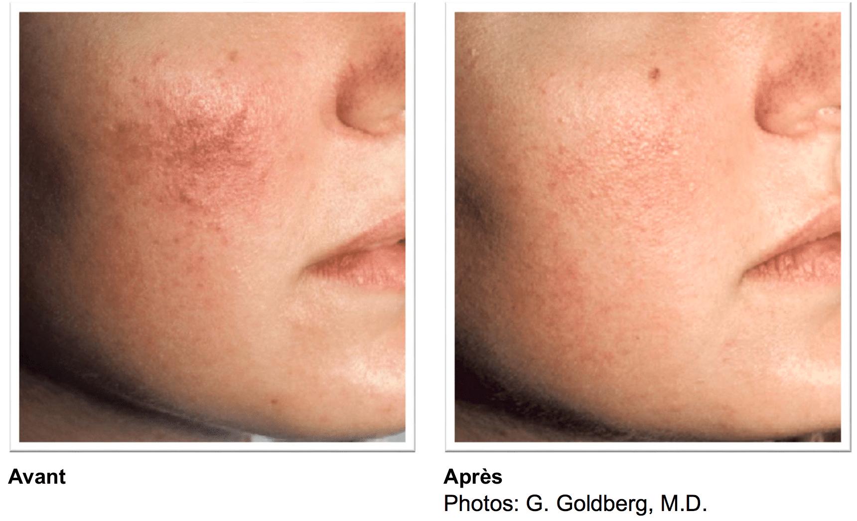 Erythrose sur visage