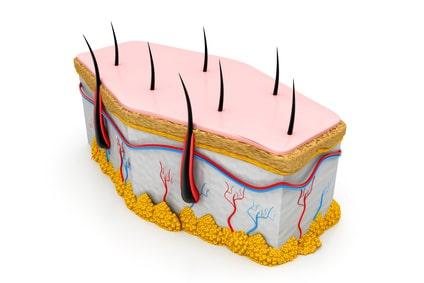 Bulbe du poil supprimé par épilation laser