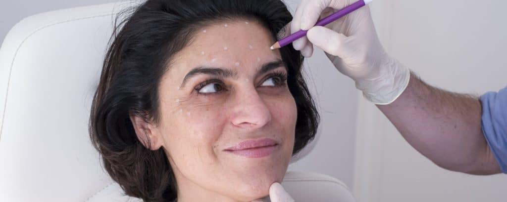 Traçage zones des injections par le médecin esthétique de Lyon