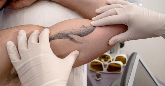 les règles à suivre pour effacer un tatouage au laser