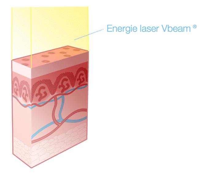 Energie délivrée par le laser à colorant pulsé VBeam Perfecta Candeal©