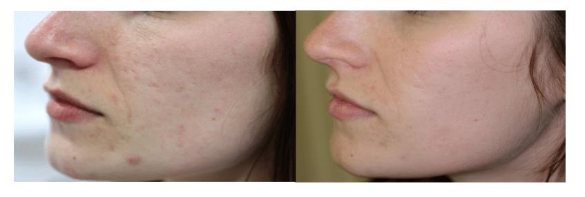 Traitement de l'acné avec la radiofréquence sublative Etwo de Candela