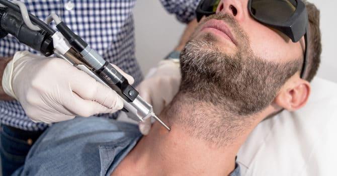 Traitement épilation laser homme de la barbe